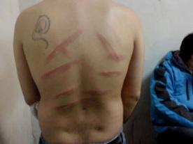 [FOTOS] Ultima información que llega desde carcel de Valdivia sobre las torturas a internos